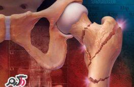 یائسگی عمده ترین دلیل پوکی استخوان در بین زنان