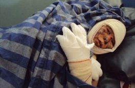 کاهش خودسوزی در هرات به معنای پایان خشونتها نیست!