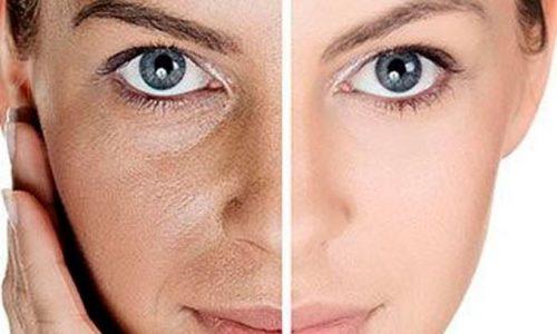 تیپ پوست تان را میشناسید؟