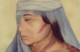 سهم نرگس از ازدواج؛ چشم کبود و دست شکسته