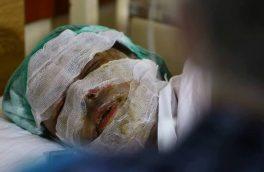 اسید پاشی؛ روش تازهی خشونت بر زنان
